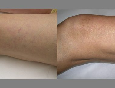 Non Invasive Varicose Vein Treatment