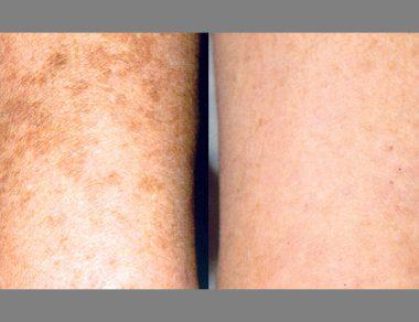 Laser Freckle Removal Melbourne