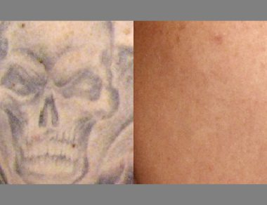 Permanent Tattoo Removal