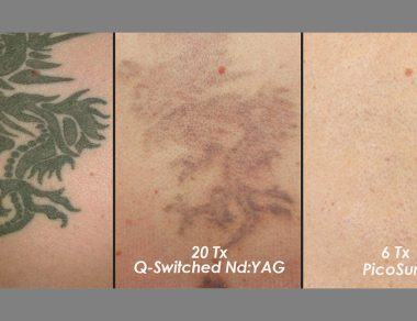Laser Treatment for Tattoo Removal